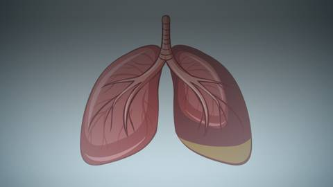 Exploring Early-Stage Mesothelioma: What Are the Latest Treatment Approaches?