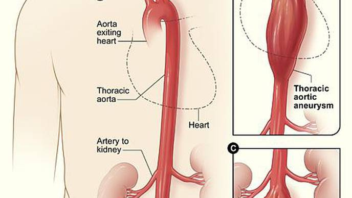 Genetic Scoring Can Identify More Men at Risk for Aortic Aneurysm